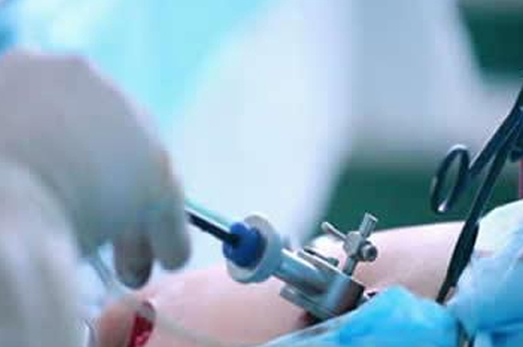 Advanced Laparoscopic surgery